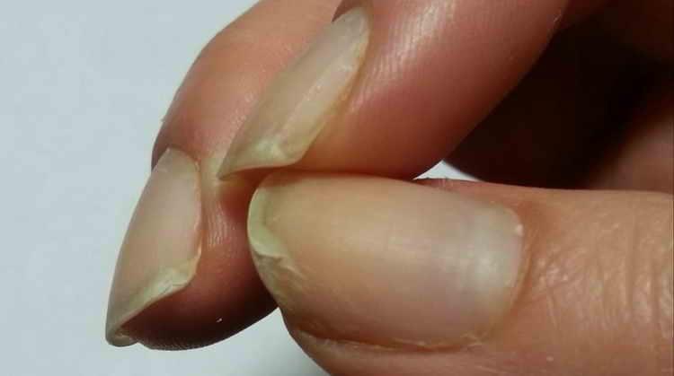 симптомы слоения ногтей на руках