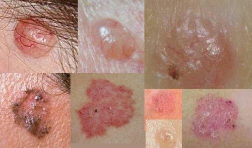 Виды меланомы