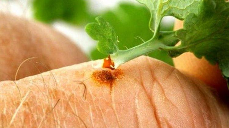 Невзирая на причины возникновения бородавок на пальцах рук, одним из самых эффективных средств для лечения является сок чистотела.