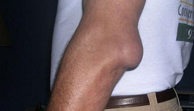 Узнайте о симптомах бурсита локтевого сустава (на фото), которые требуют лечения.