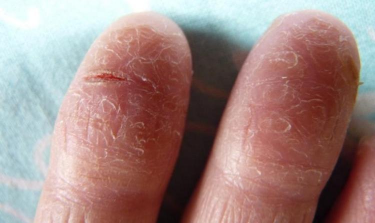 Симптомы трещина на пальцах руки, для которых можно подобрать лечение.