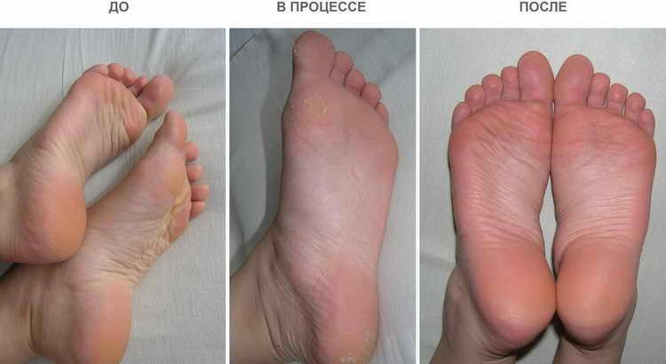 отшелушивающая маска для ног фото до и после