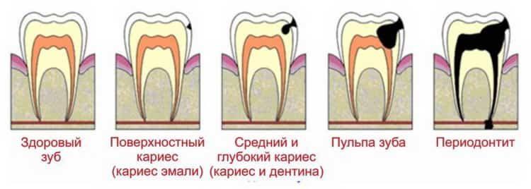 Все о причинах, симптомах и лечении пульпита зуба