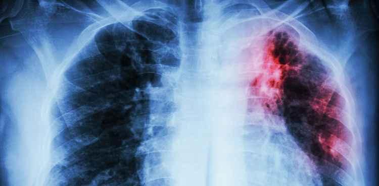 Печеночница поможет больным туберкулезом