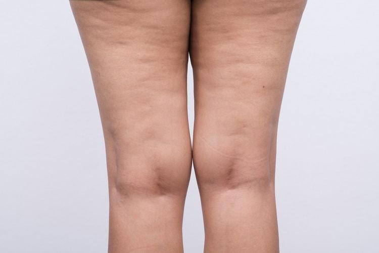 благотворно влияет целозия на кожу, в частности помогает бороться с целюлитом.