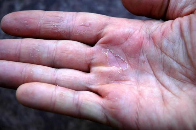 Отварами и примочками на основе растения лечат грибковые поражения кожи.