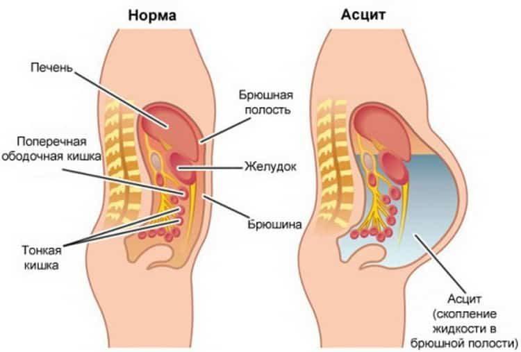 асцит брюшной полости лечение