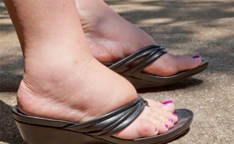 О начинающемся заболевании говорят постоянная усталость и отечность ног.