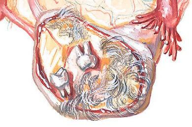 Опухолевидное новообразование из зубов, волос и других клеток
