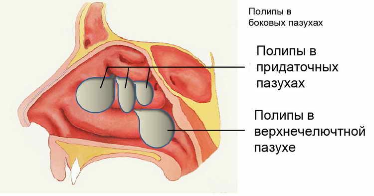 полипы в носу лечение