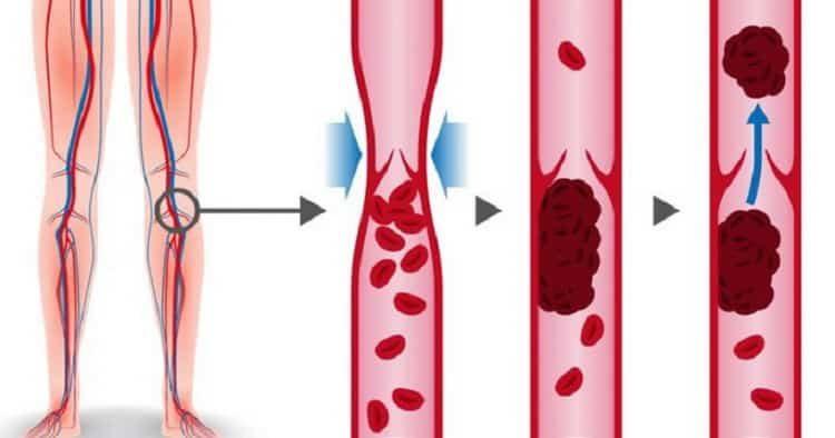 Тромбоз глубоких вен нижних конечностей: причины, симптомы и лечение народными средствами в домашних условиях