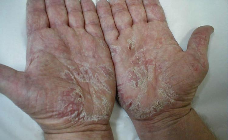 Растение используется для лечения кожных заболеваний, экземы.