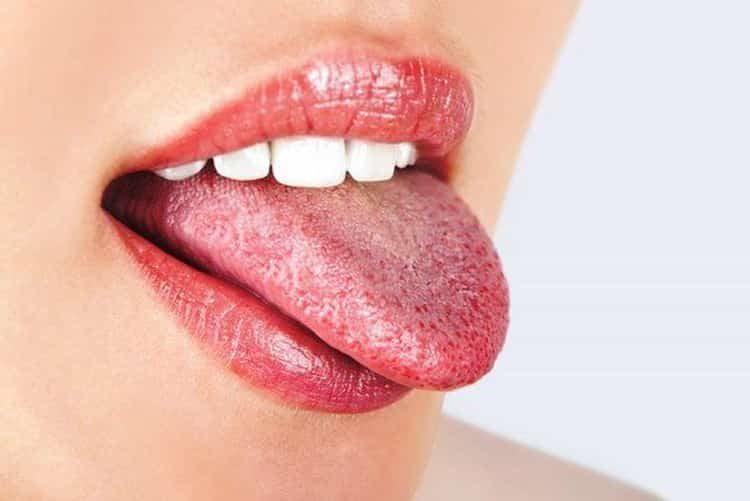 белый налет на языке: причины