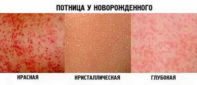 потница у детей фото симптомы и лечение