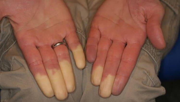 При болезни Рейно на начальных стадиях пальцы, конечности бледнеют.