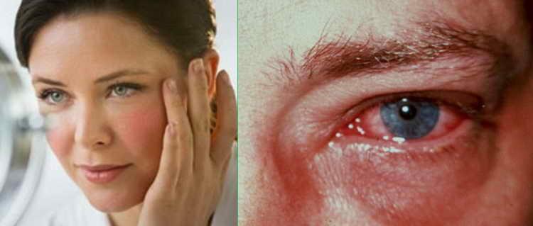 красные глаза причины и последствия