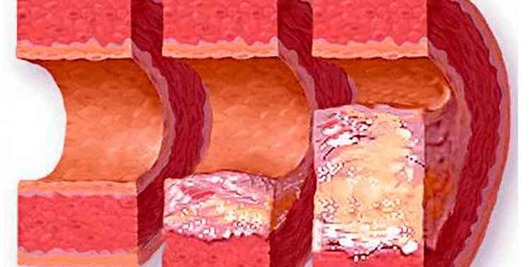 Ярутка поможет от атеросклероза