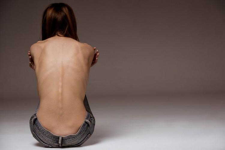 Больной постоянно ощущает холод из-за недостаточной массы тела и нехватки полезных веществ в организме.