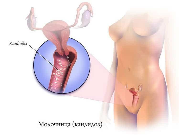 Зуд и жжение в интимной зоне у женщин: причины, как лечить