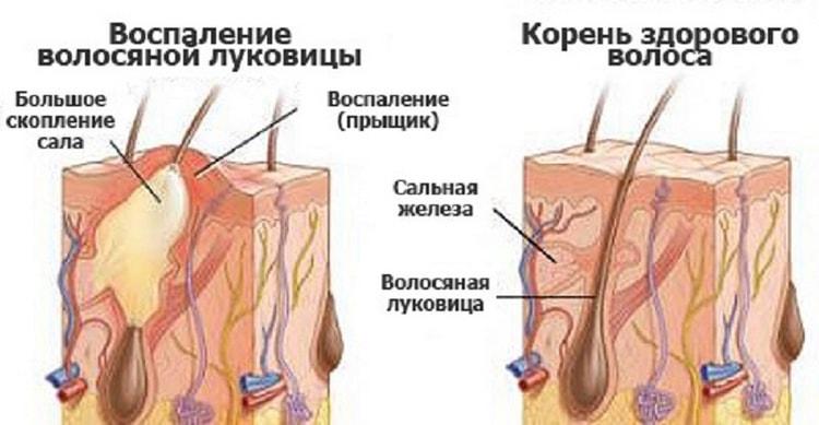 Прыщи могут появляться из-за воспаления.