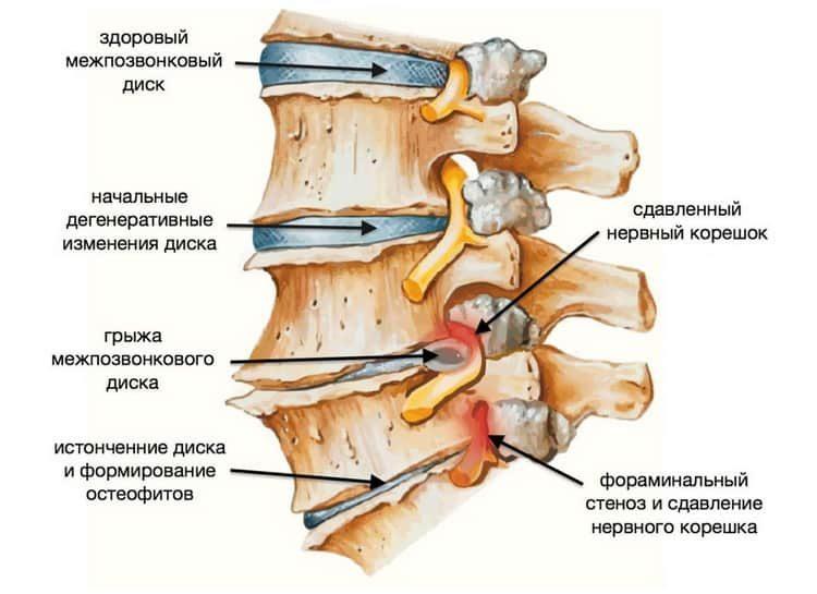 Поясничный остеохондроз: симптомы и лечение народными средствами в домашних условиях