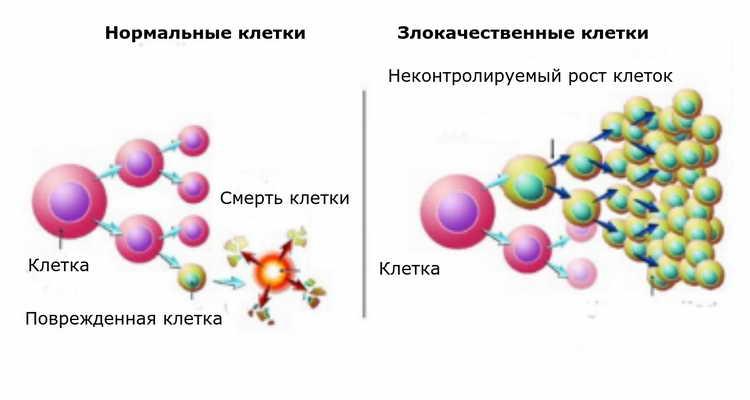 лечение рака народными средствами самые эффективные
