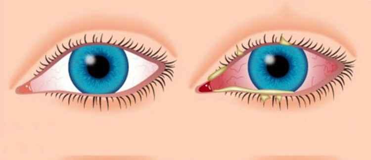 Фенхель поможет справиться с болезнью глаз