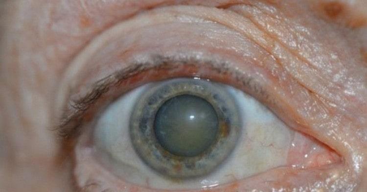 Мухомор применяют при лечении ряда заболеваний глаз.
