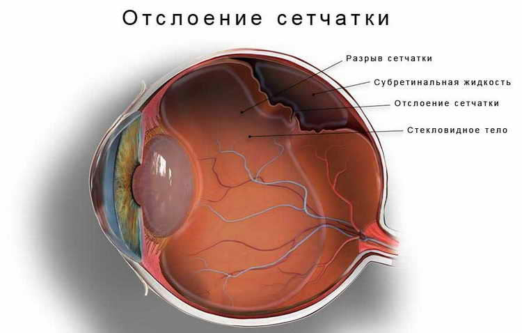 метод шичко бейтса восстановление зрения