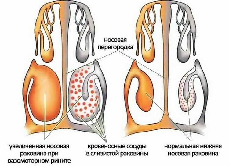 лечение хронического вазомоторного ринита у взрослых