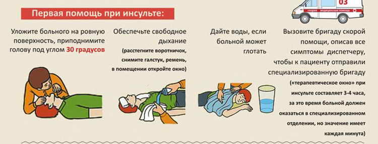 первая помощь при инсульте в домашних условиях