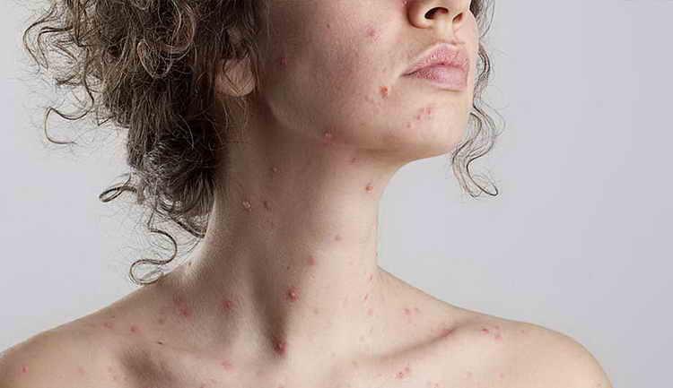 воспаление лимфоузлов в паху у мужчин причины