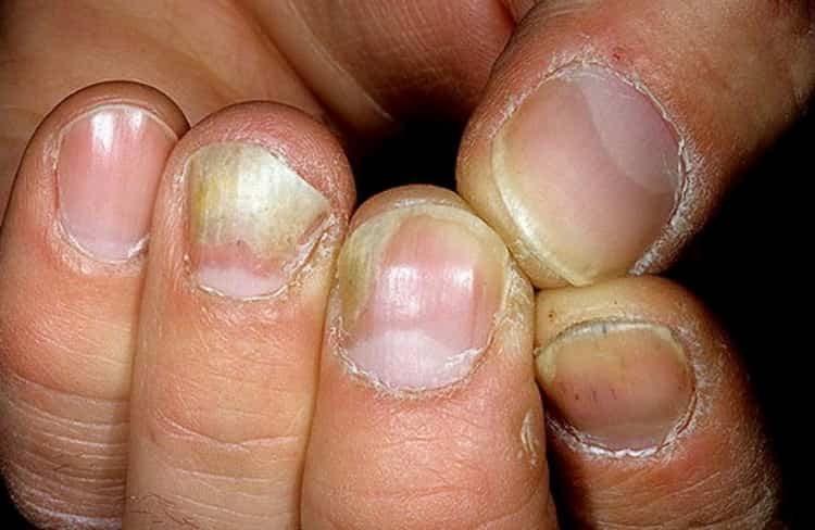 Все о причинах, симптомах и лечении онихомикоза ногтей