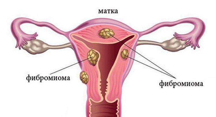 Узнайте все о симптомах и признаках фибромиомы матки.