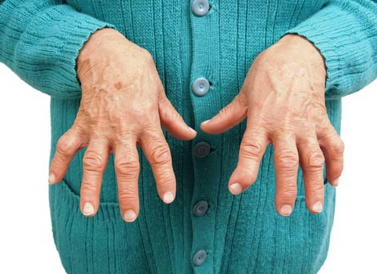 Поможет ли цимицифуга при артрите