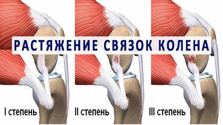 болят колени что делать
