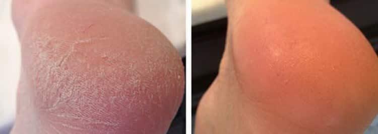 Чем полезны ванночка для ног с перекисью водорода