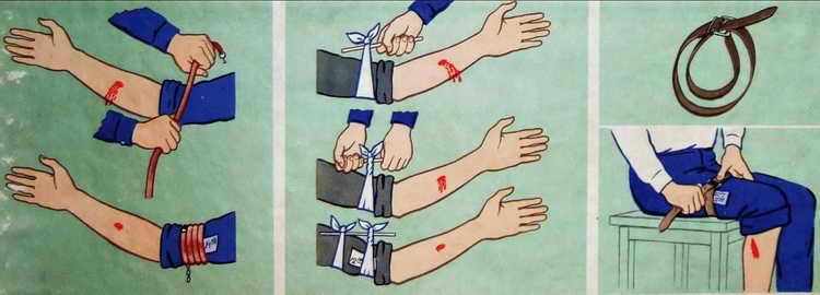 как оказать первую помощь при артериальном кровотечении