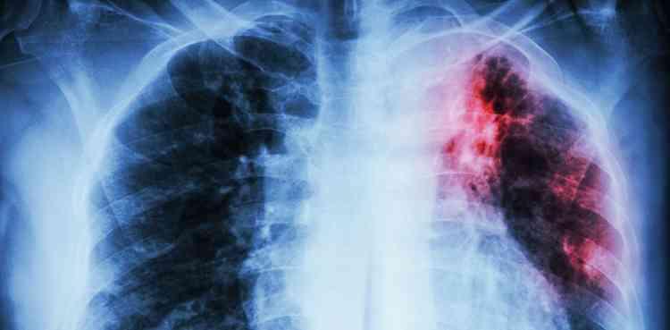 Агарикус при туберкулезе