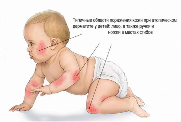 Фотосимптомовилеченияместатопическогодерматита у детей