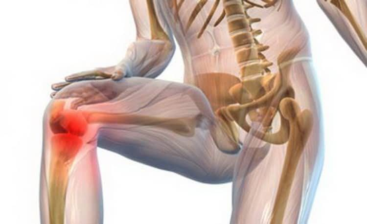 Поможет ли фиалка при артрите
