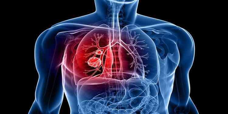 Спасет от туберкулеза пармелия