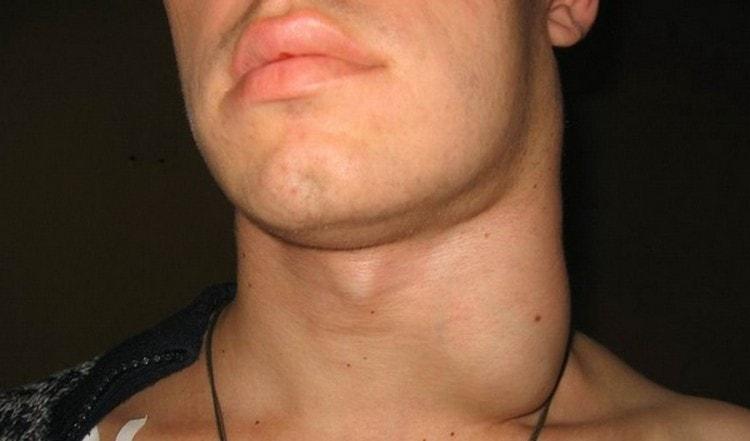 Если воспаленные лимфоузлы не лечить, это чревато очень опасными последствиями.