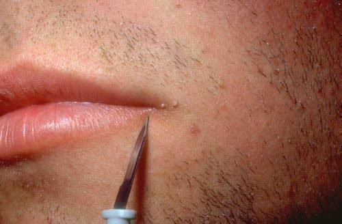 Папилломы на губах