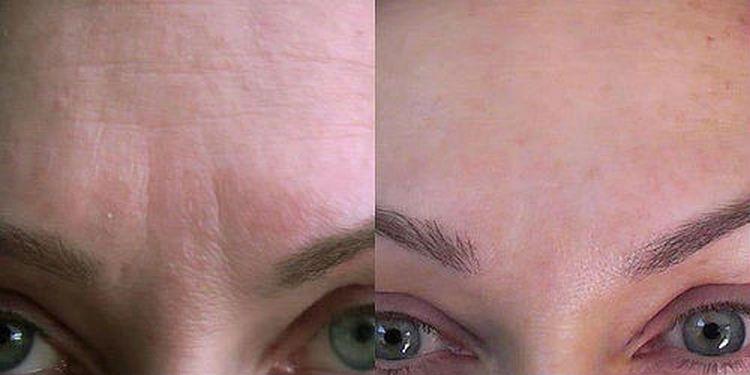 регулярное применение масок дает хороший эффект.
