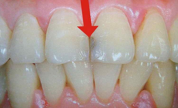 как быстро отбелить зубы в домашних условиях