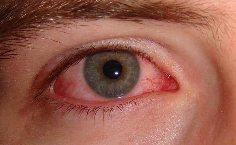 Заболевания глаз тоже лечат отварами этого растения.