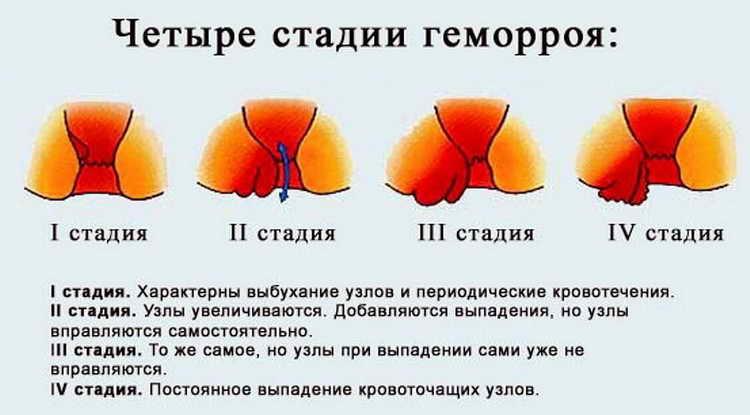 геморрой лечение у женщин