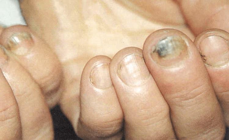 Гравиола помогает лечить грибковые заболевания ногтей и кожи.