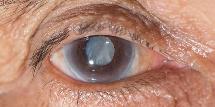 растение применяется для лечения глаукомы.